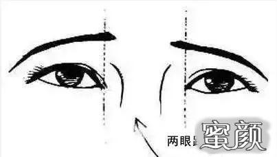 广州紫馨美医疗美容:内眼角开大就一定更好吗?