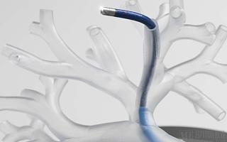 强生、直观外科正面PK,肺部介入机器人将成为新风口?