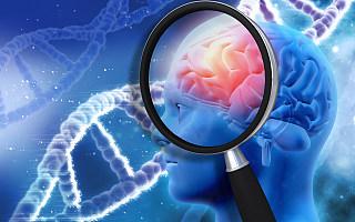 阿尔茨海默症新药获批,阿杜卡玛单抗冲出重围