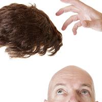 """""""秃然经济""""红利凸显,植发第一股应运而生"""